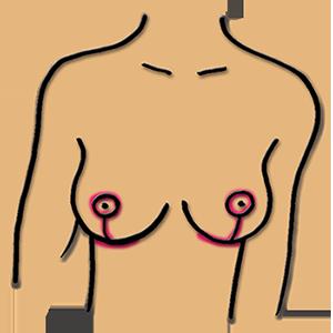 Bruststraffung mit einem T-Schnitt