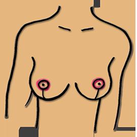 Schnitt um den Brustwarzenvorhof mit Implantat