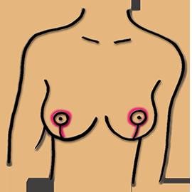 Bruststraffung mit einem I-Schnitt
