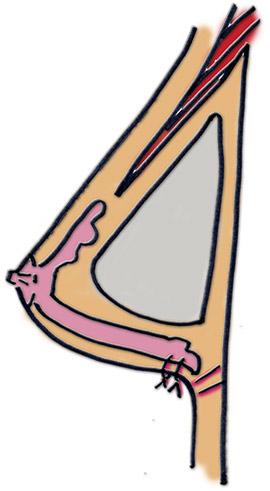 Implantat unter dem Brustmuskel