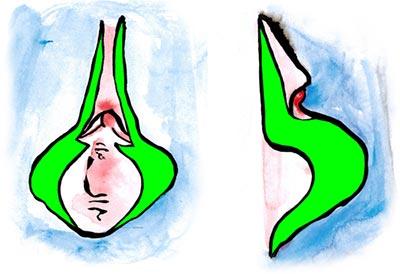Lineare Schamlippenkorrektur mit Reduktion der Klitorisvorhaut (Präputiolabioplastik)
