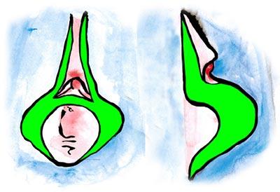 Lineare Schamlippenkorrektur mit Reduktion der Klitorisvorhaut und Klitoriskorrektur