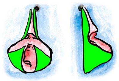 Schamlippenkorrektur mittels Keilresektion der Schamlippen mit Reduktion der Klitorisvorhaut